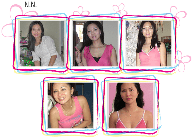 N. N. natural breast enlargement before and after photos