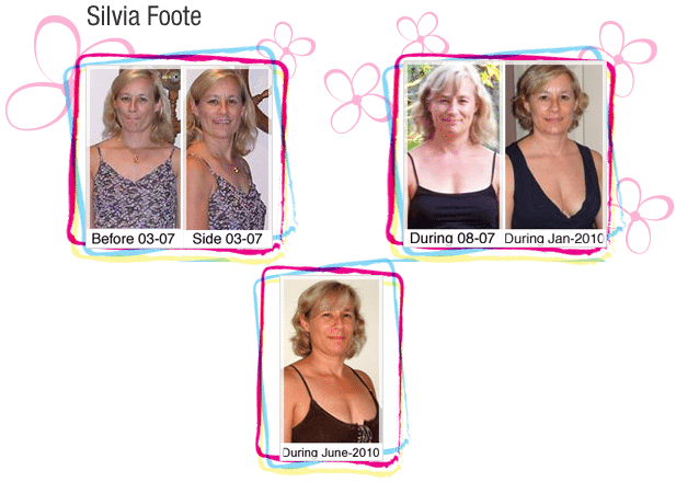 Silvia Foote's before and after breast growth