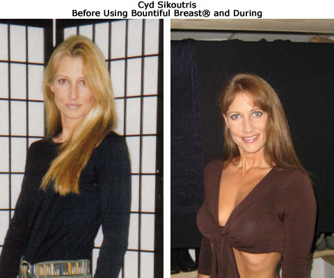 before and after breast growth of Cynthia