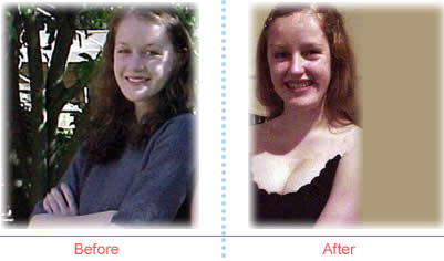 Inga M. before and after image