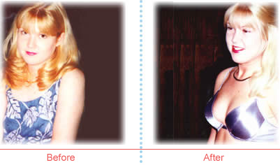 Jennifer Johnson before and after image