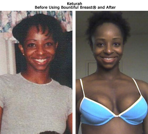 Keturah before and after breast growth