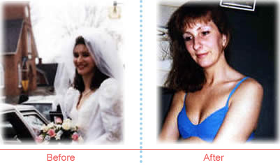 Laura before and after image