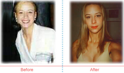 Stacy Schweiss before and after image