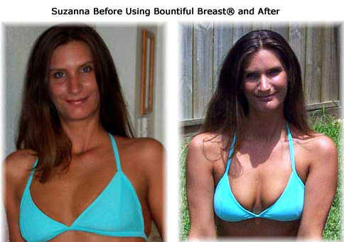 Suzanne before and after breast growth