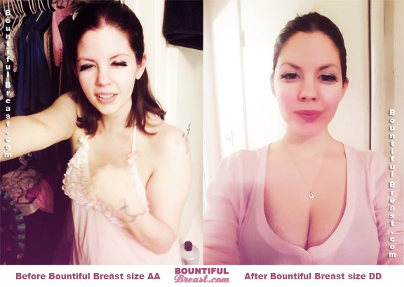 Teresa T. breast growth before after