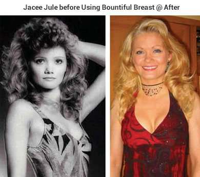 Jacce Jule Before using Bountiful Breast @After